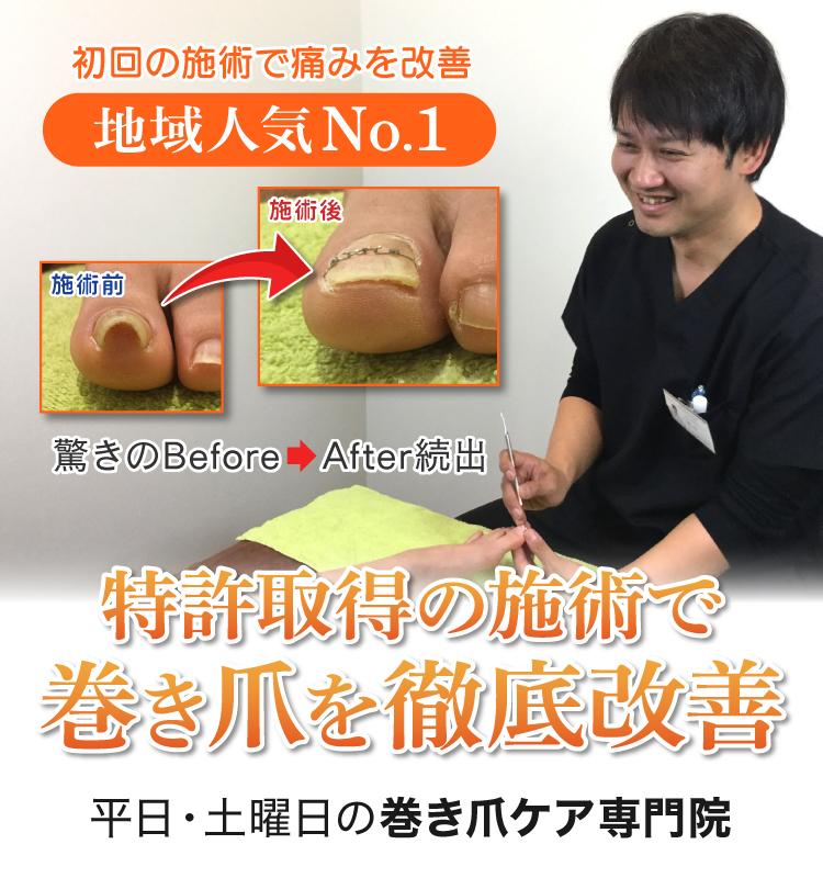 痛みのないたった1度の施術で巻き爪の痛みを改善、さらに数回の施術で二度と再発しない爪にしていきます